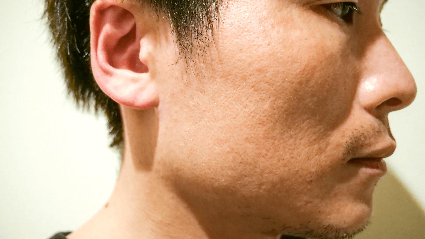 化粧水使用後の横顔